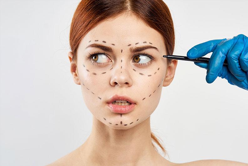 Foto de uma mulher branca, jovem e com cabelo levemente avermelhado. Seu rosto recebe uma série de marcas, deixando subentendido que será feito algum procedimento estético. Segurando a caneta que faz as marcações, podemos ver uma mão com uma luva cirúrgica azul. O fundo da imagem é branco.